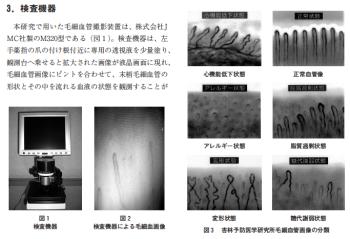 毛細血管観察装置の検証 ~認知行動の変容による改善症例と悪習慣による悪化例~の表紙