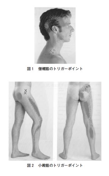筋筋膜トリガーポイントを緩解させる経穴・手足の骨間筋についての考察の表紙