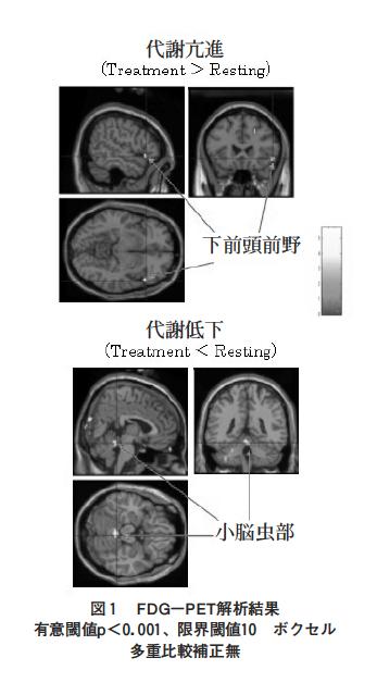 頸部痛患者におけるカイロプラクティック施術後の局所脳代謝変化:18F-FDG-PET研究の表紙
