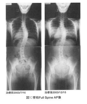 突発性側彎症のある成人に対するカイロプラクティック治療の可能性の表紙