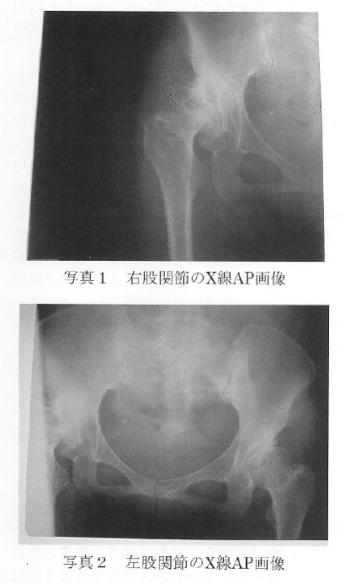 カイロプラクティックから診た股関節障害についての考察の表紙