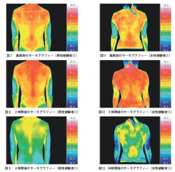 カイロプラクティック施術効果のサーモグラフィーによる計測の表紙