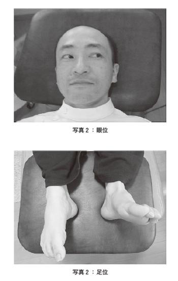 前庭神経炎と診断された一症例 ―固有受容器を介した刺激の入力と出力応答からみた施術―の表紙