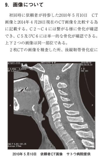 後縦靭帯硬化症の一症例 ~カイロプラクティック施術の効果~の表紙