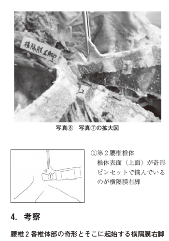 横隔膜-椎間板-大腰筋の繋がりの表紙