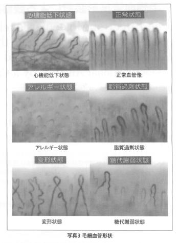 末梢血管床の形状変化からみた分子矯正栄養学の施術後補足指導の効果一毛細血管撮影装置による観察評価に基づいて一の表紙