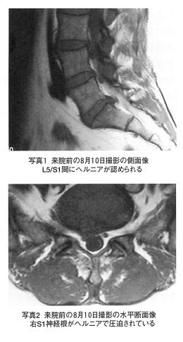 腰椎椎間板へルニアと診断された腰部神経根症の1症例の表紙