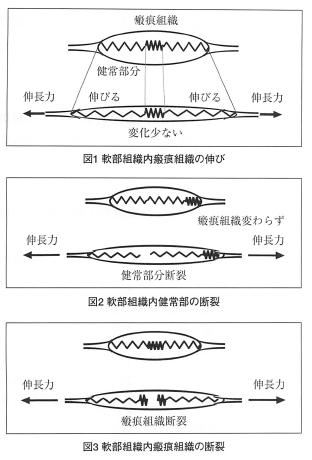 筋、腱、靭帯へのアプローチ-「シャトル」使用を例として-の表紙