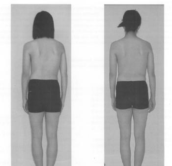 特発性側彎症の改善症例の表紙