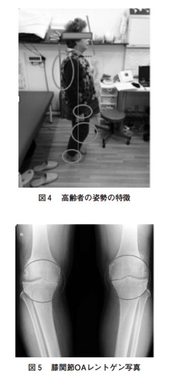 高齢者の変形性膝関節症に対するアプローチ Joint by Joint Approachを用いた一症例についての表紙