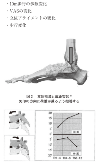 高齢者の変形性膝関節症に対する胸椎へのアプローチの表紙
